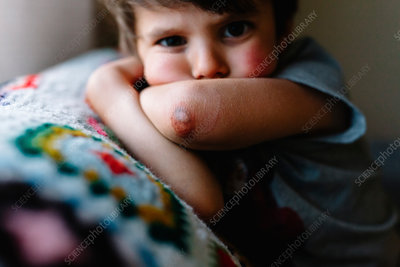 Close up of young boy with bruised elbow
