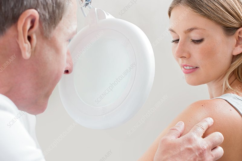Doctor examining mole on young woman's shoulder