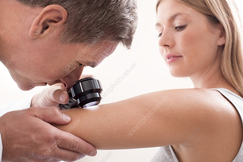 Doctor examining mole on young woman's arm