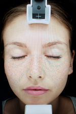 Image of young woman's face in skin clinic