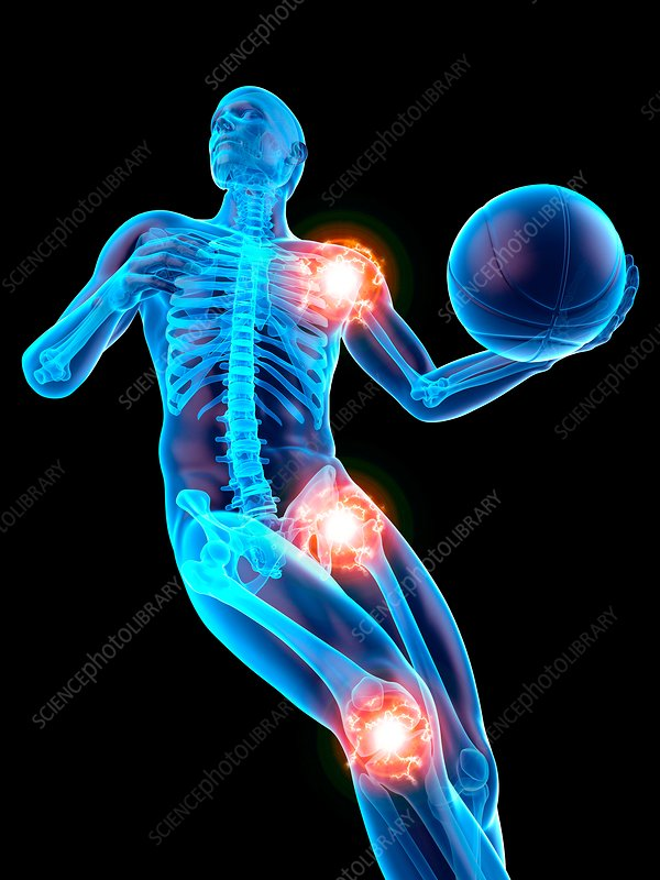 Person playing basketball, joints, illustration
