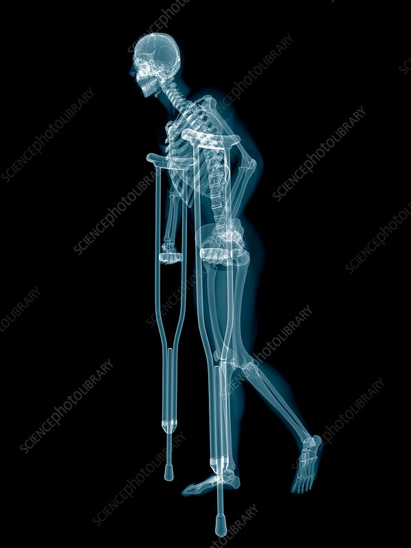 Skeletal system of someone on crutches, illustration