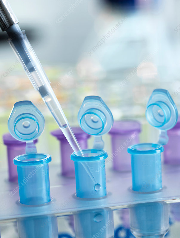 Pipetting sample into vial for testing in the laboratory