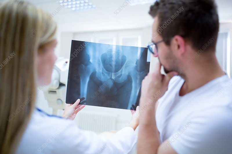 Two doctors holding x-ray of human pelvis