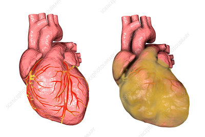 Healthy heart and heart with left ventricular hypertrophy