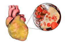 Heart disease, illustration