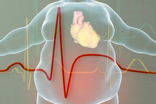 Heart attack in obese man, illustration