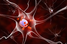 Parkinson's disease nerve cells, illustration