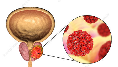 Viral etiology of prostate cancer, conceptual illustration