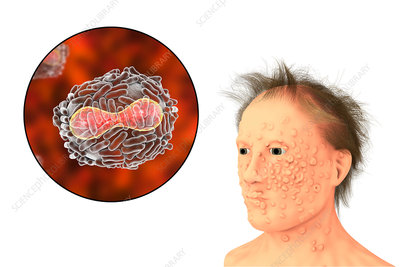 Smallpox virus and disease, illustration