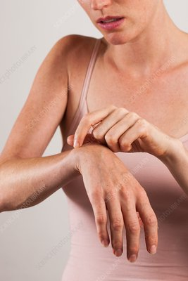 Woman scratching arm