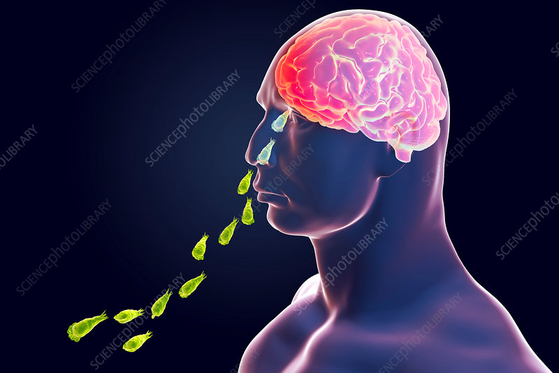 Naegleria parasites infecting brain, illustration