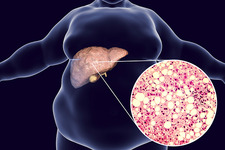 Fatty liver, illustration and micrograph