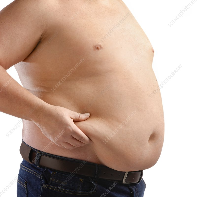Topless overweight man holding body fat