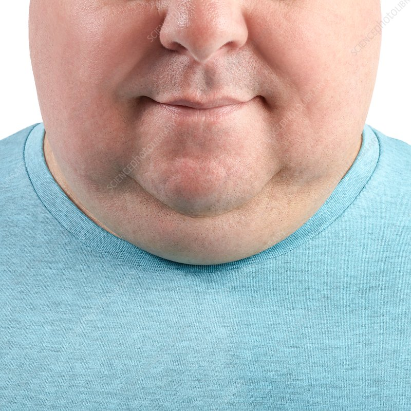 Overweight man's chin and neck