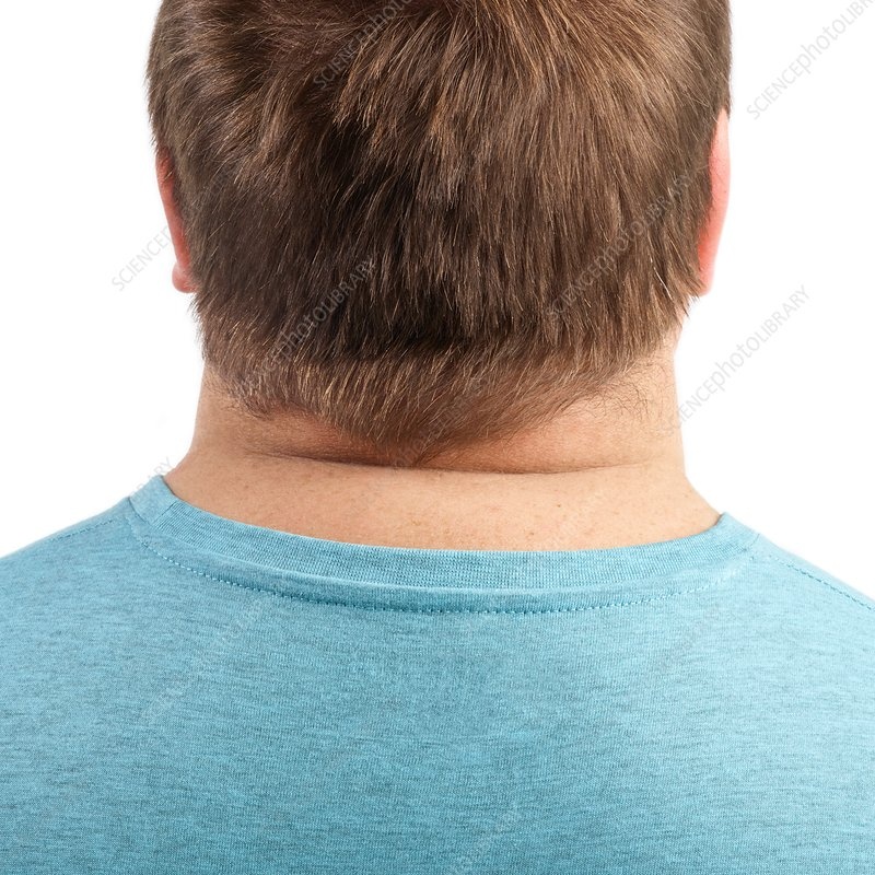 Overweight man's neck