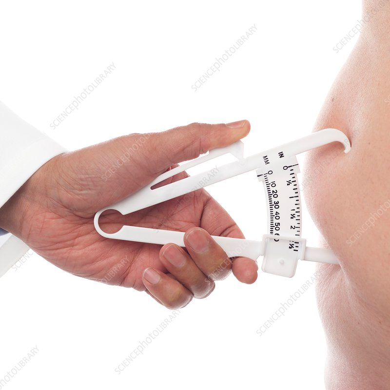 Doctor measuring body fat