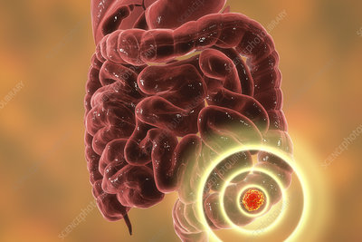 Colon cancer treatment, conceptual illustration