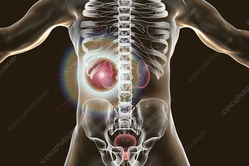Kidney cancer treatment, conceptual illustration
