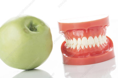 Dental model of teeth with apple
