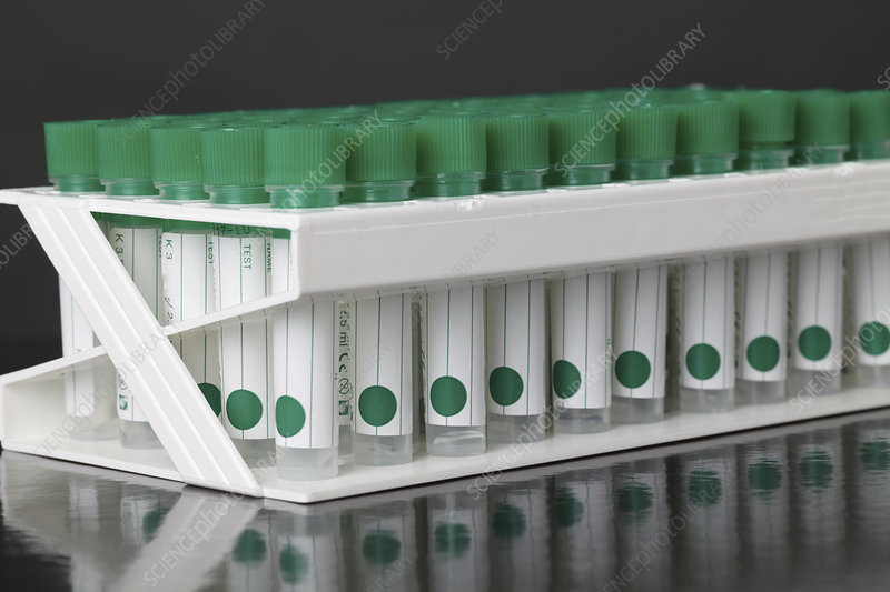 Plastic test tubes in rack