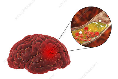 Treatment and prevention of stroke due to atherosclerosis, c