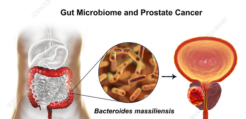 Gut microbiome and prostate cancer, conceptual illustration