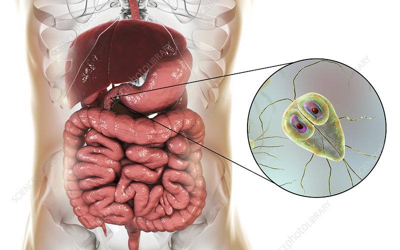 Giardia lamblia in human duodenum, illustration - Stock ...