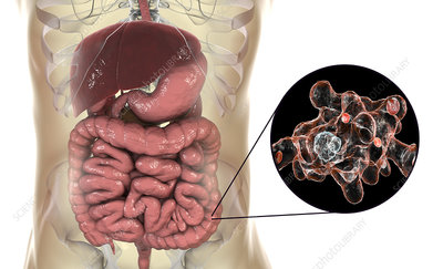 Parasitic amoeba in large intestine, illustration
