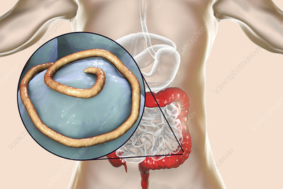 Threadworm infection, illustration