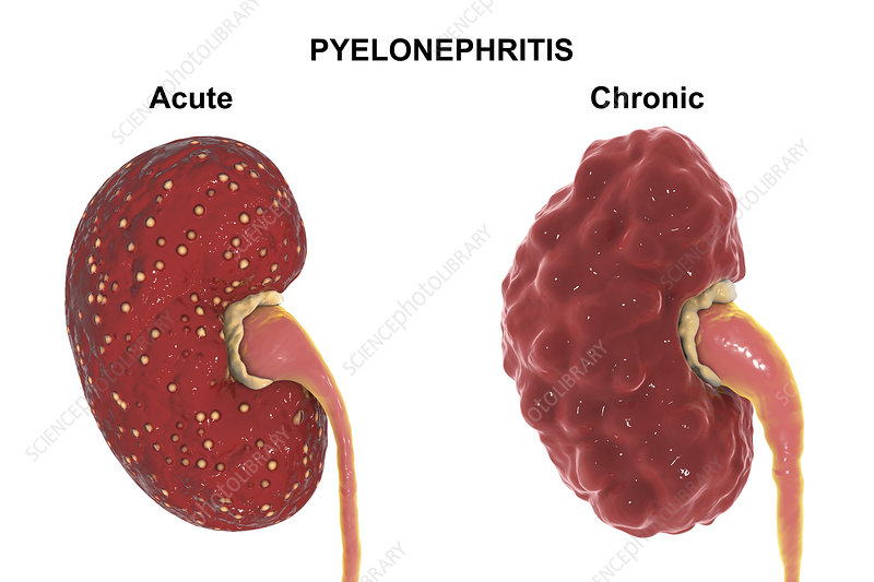Anatomy of acute and chronic pyelonephritis, illustration