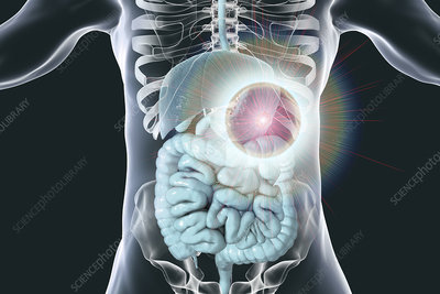 Human stomach cancer treatment, conceptual illustration