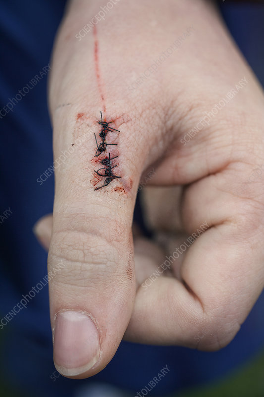An injured left thumb with stitches on the wound