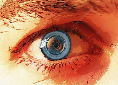 Human eye implant, illustration