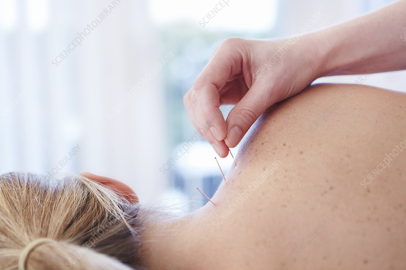 Woman receiving acupuncture in shoulder