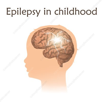Childhood epilepsy, illustration