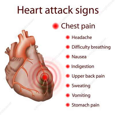 Heart attack signs, illustration