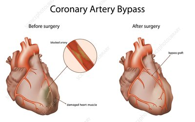 Coronary artery bypass, illustration