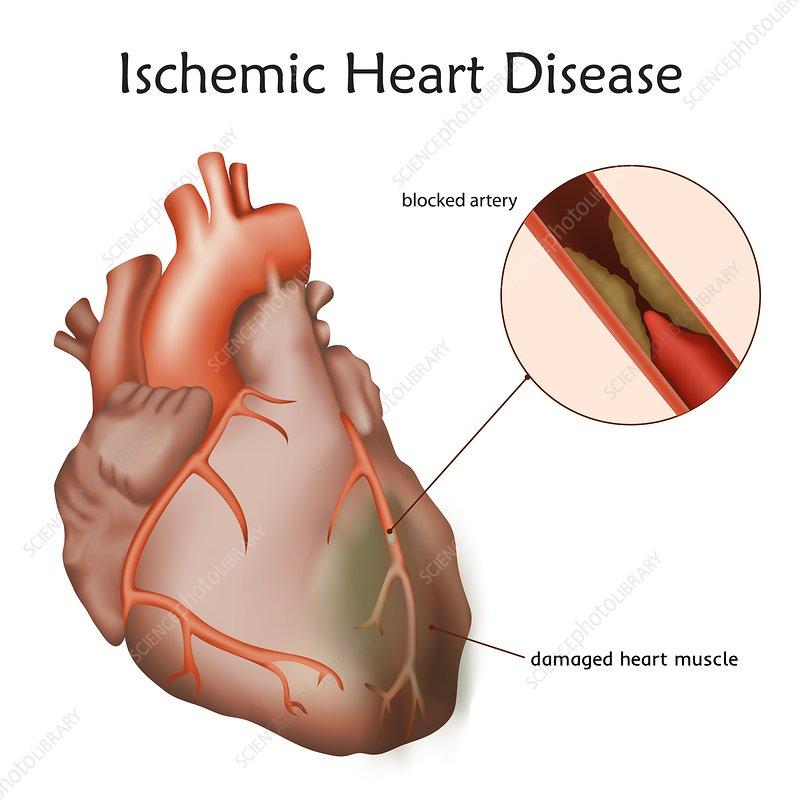 Ischemic heart disease, illustration - Stock Image - F022 ...