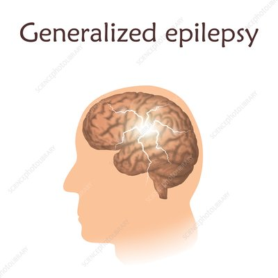 Focal epilepsy, illustration