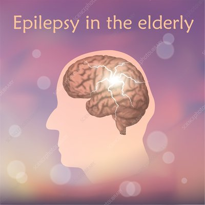 Epilepsy in the elderly, illustration