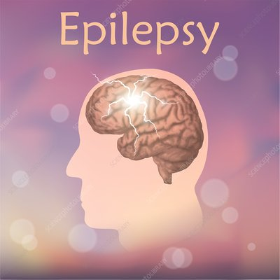 Epilepsy, illustration