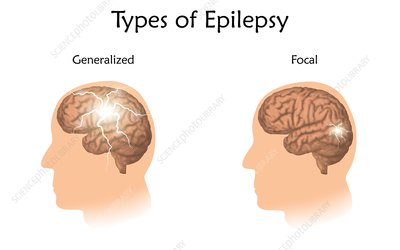 Types of epilepsy, illustration