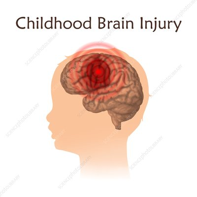 Childhood brain injury, illustration