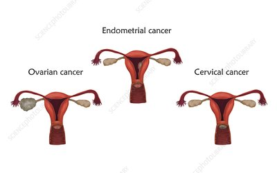 Reproductive system cancers, illustration