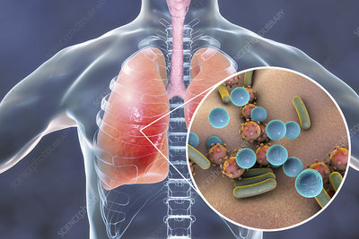 Pneumonia, conceptual illustration