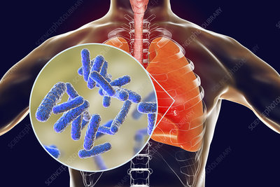 Bacterial pneumonia, conceptual illustration