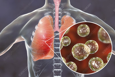 Pulmonary blastomycosis, conceptual illustration