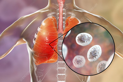Pneumocystis pneumonia, conceptual illustration