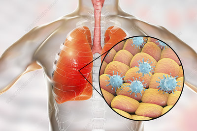 Viral pneumonia, conceptual illustration